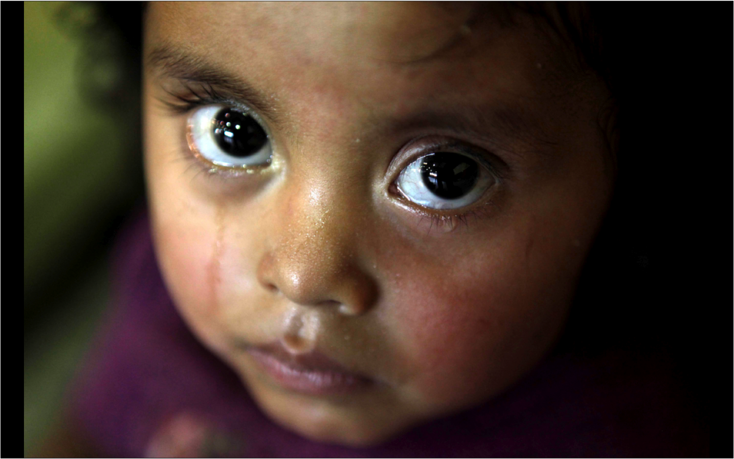 In Guatemala, half of the population between zero and five years of age suffer from chronic malnutrition