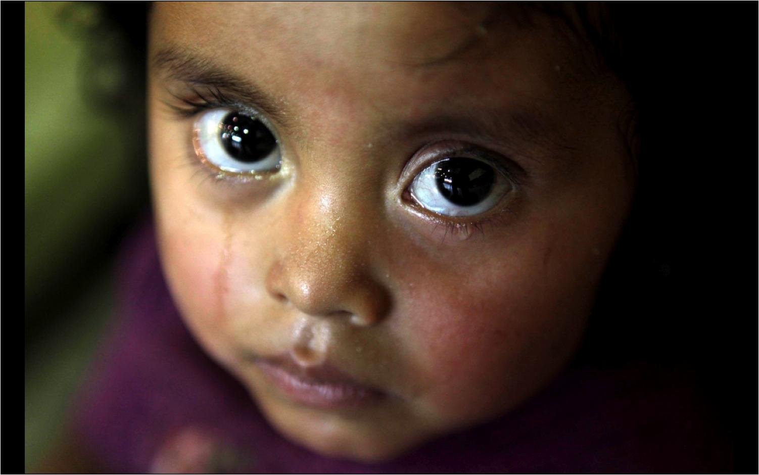 En Guatemala, la mitad de la población de entre cero a cinco años padece desnutrición crónica